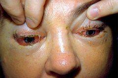Отеки век - симптом трихинеллеза