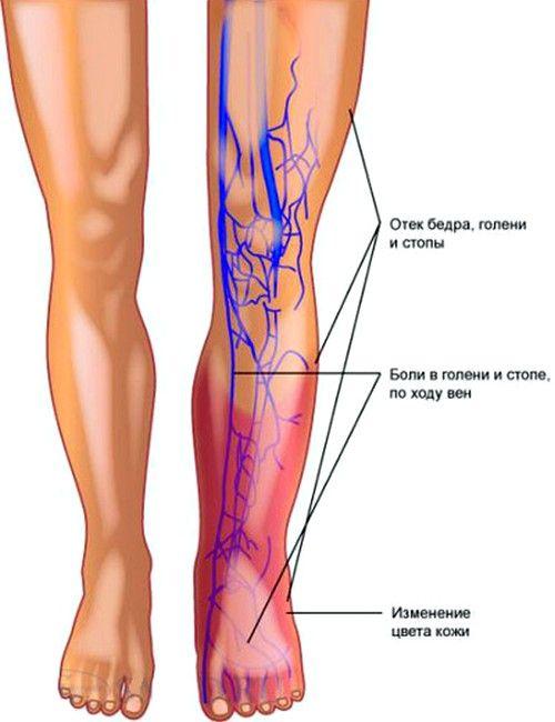 Принцип возникновения тромбофлебита глубоких вен нижних конечностей