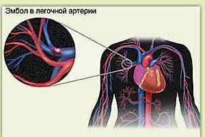 Embolie pulmonară (PE)