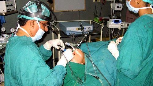Îndepărtarea amigdalelor chirurgical efectuate cu ajutorul unor instrumente speciale pentru disecție tesuturilor moi