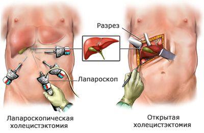 Операция холецистэктомии: полостная и лапароскопическая