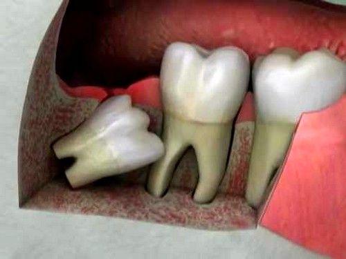 С учетом срока появления зуба мудрости, когда все зубы сформировались, часто возникает проблема с пространством размещения нового зуба