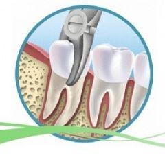 Razvoj infekcije - jedan od razloga za vađenje zuba
