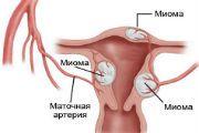 Узловая миома матки - причины, симптомы, лечение