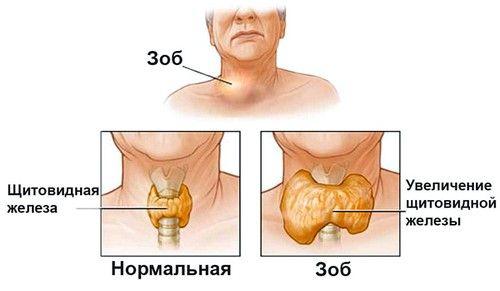 gusa nodulara a glandei tiroide