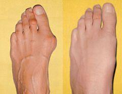 Вальгусная деформация ноги