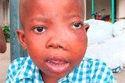 Вирус эпштейна-барр у детей: причины, симптомы, лечение