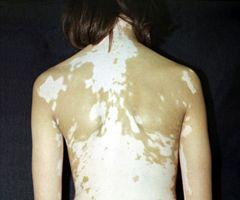 Витилиго спина