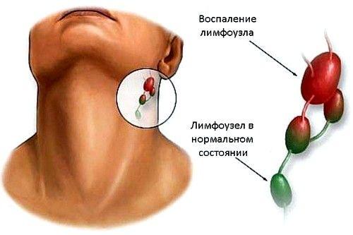 Diferența dintre nodul limfatic sănătos și bolnav în spatele urechii