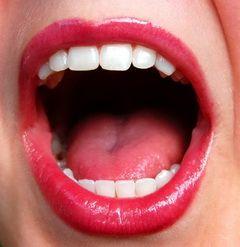 Воспаление слюнной железы - острое инфекционное заболевание