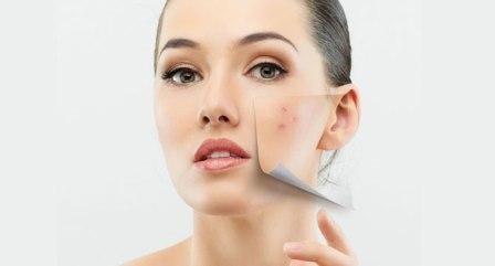 Cum de a trata acneea inflamatorie