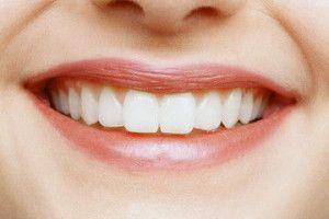 Restauracija zuba