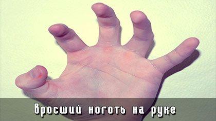 Вросший ноготь на руке