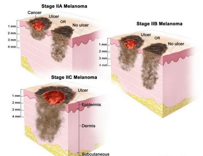 На третьей стадии меланома идет вглубь
