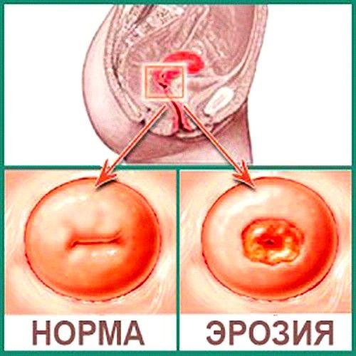 Uterusa erozije dijagnosticirana na pola od svih žena na svijetu