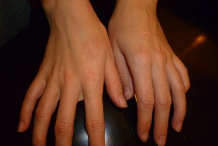 Pruritul cosuri de pe mâini și degete - o problemă gravă și supărătoare, care trebuie să fie abordate