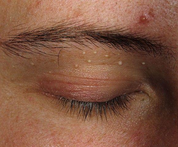 cosuri Destul de des mancarime pe fata din cauza infecții ale pielii