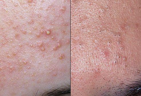Utilizați medicamente speciale pentru a scuti de mâncărime și inflamarea acnee