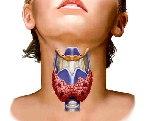 Boli tiroidiene la femei