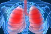 zakryitaya i otkryitaya forma tuberkuleza