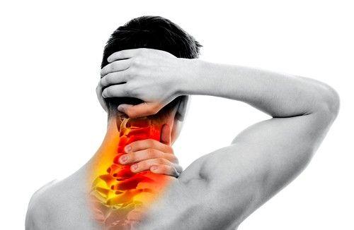 Un nerv prins la nivelul coloanei vertebrale cervicale