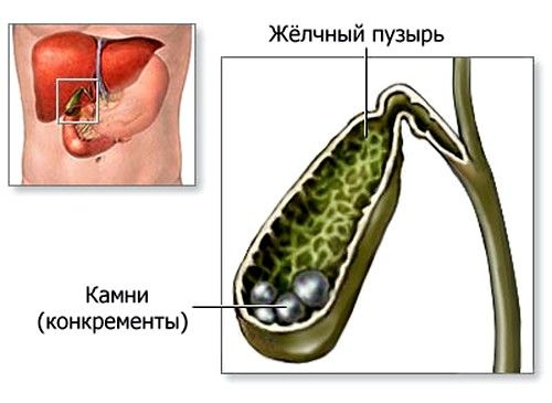 Litiaza biliară: simptome si prevenire