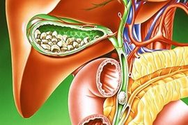 Желчнокаменная болезнь, причины, симптомы и лечение