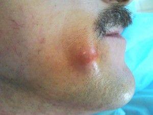 Жировики под кожей: причины, характеристики, лечение