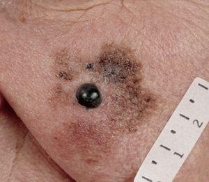 Zlokachesvtennaya lentigo melanom: caracteristici ale bolii și tratamentul