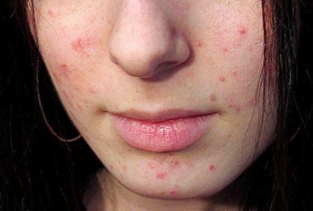 Akne na licu može ukazivati na bolest unutrašnjih organa