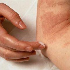 Metode i sredstva za liječenje svraba kože
