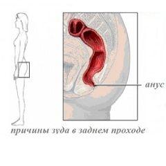Pruritul în anus